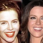 Kate Beckinsale Before And After Pictures