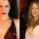Kate Beckinsale Before And After Plastic Surgery 150x150