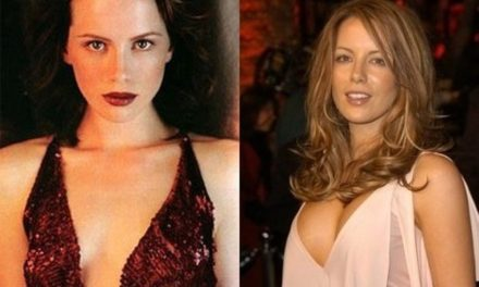 Kate Beckinsale: Plastic Surgery Done Right