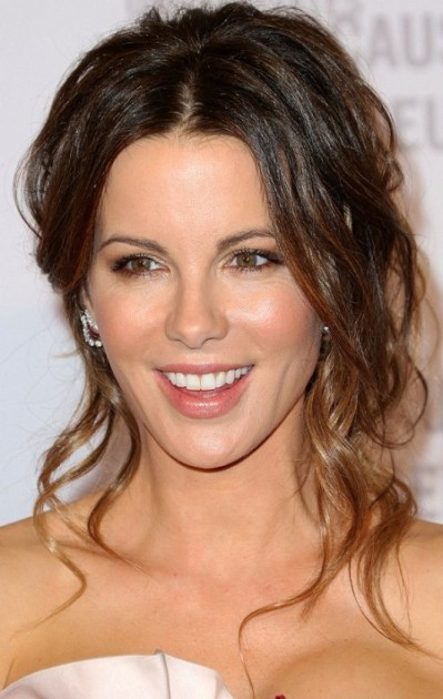 Kate Beckinsale Filler Injections On Her Lips 399x630