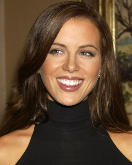 Kate Beckinsales Lips After Plastic Surgery