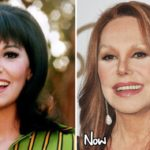 Marlo Thomas Before And After Facial Fillers