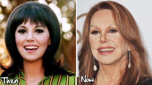 Marlo Thomas Before And After Facial Fillers 630x355