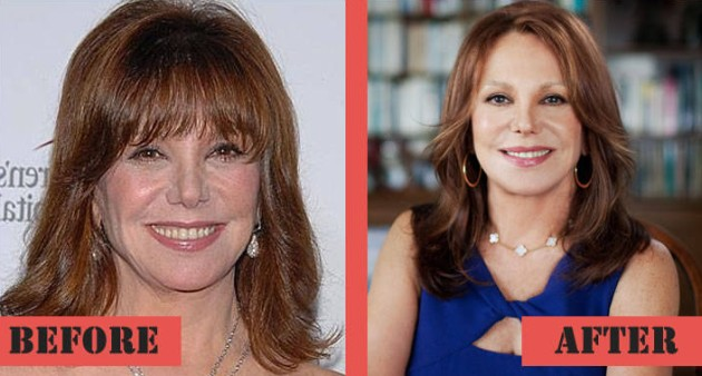Marlo Thomas Before And After Pictures