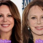Marlo Thomas Before And After Plastic Surgery 150x150