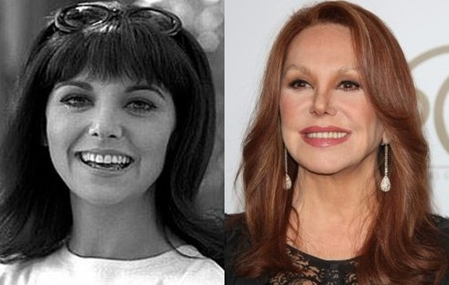 Marlo Thomas Before And After Plastic Surgery Eyebrow Lift