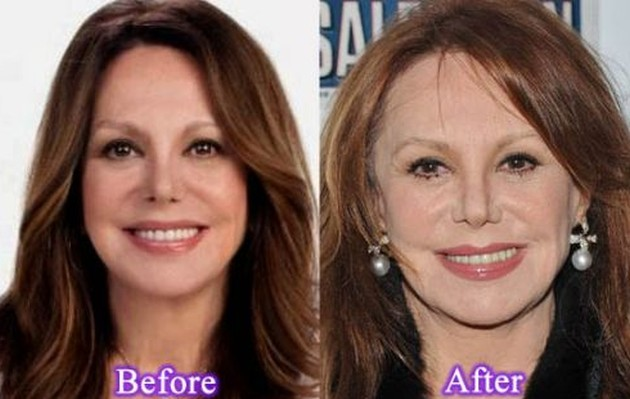 Marlo Thomas Before And After Plastic Surgery