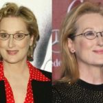 Meryl Streep Before And After Botox Injections 150x150