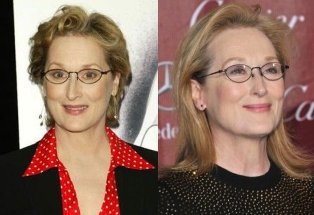 Meryl Streep Before And After Botox Injections
