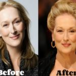 Meryl Streep Before And After Cosmetic Procedures