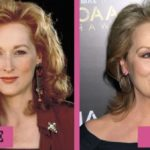 Meryl Streep Before And After Photos 150x150
