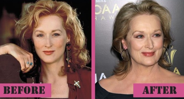 Meryl Streep Before And After Photos