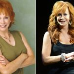 Reba McEntire Before And After Botox Injections