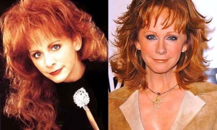 Reba McEntire Looks Great After Plastic Surgery