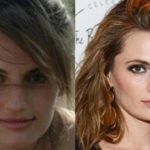 Stana Katic Before And After Nose Job 150x150