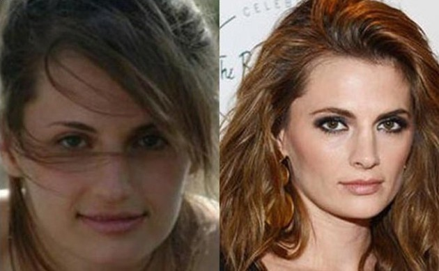 Stana Katic Before And After Nose Job
