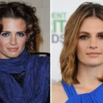 Stana Katic Before And After Plastic Surgery