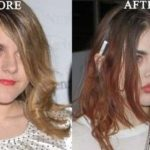 After Lip Filling Job Frances Bean Cobain's Lips Look Glossy And Filled
