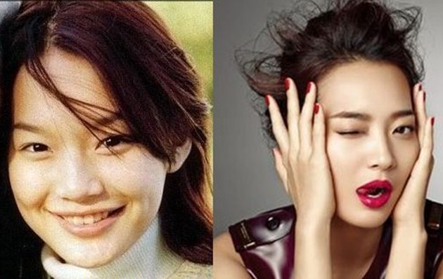 Shin Min Ah Before And After Nose Job 630x398