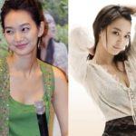 Shin Min Ah Before And After Plastic Surgery