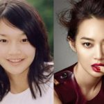 Shin Min Before And After Photos