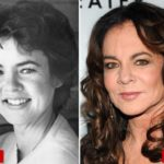 Stockard Channing Before And After Eye Lift