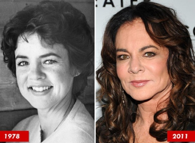 Stockard Channing Before And After Eye Lift 630x463