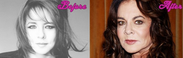 Stockard Channing Before And After Lip Augmentation
