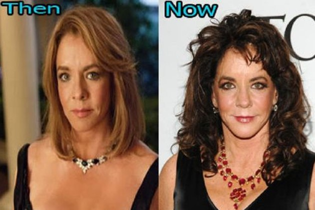 Stockard Channing Before And After Pictures