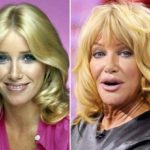 Suzanne Somers before and after pictures 150x150