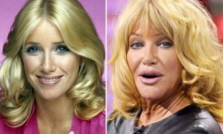 Reviews and Facts of Suzanne Somers Plastic Surgery