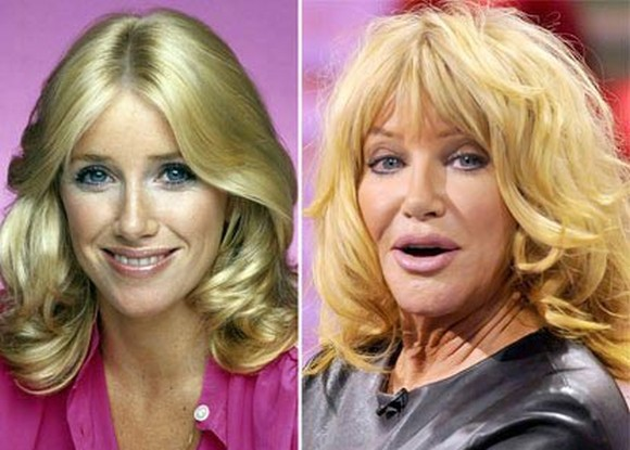 Suzanne Somers before and after pictures