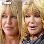 Suzanne Somers before and after plastic surgery 150x150