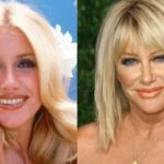Suzanne Somers before and after plastic surgery photos 150x150