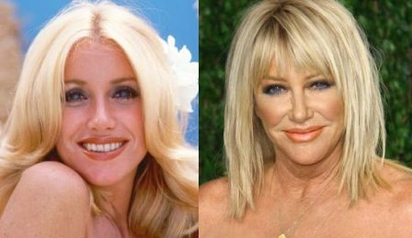 Suzanne Somers before and after plastic surgery photos