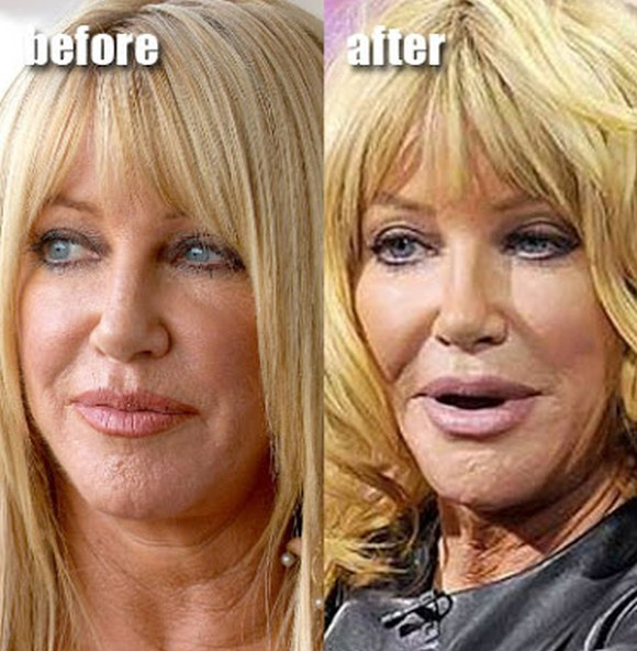 Suzanne Somers before and after plastic surgery