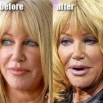 Suzanne Somers plastic surgery gone wrong 150x150