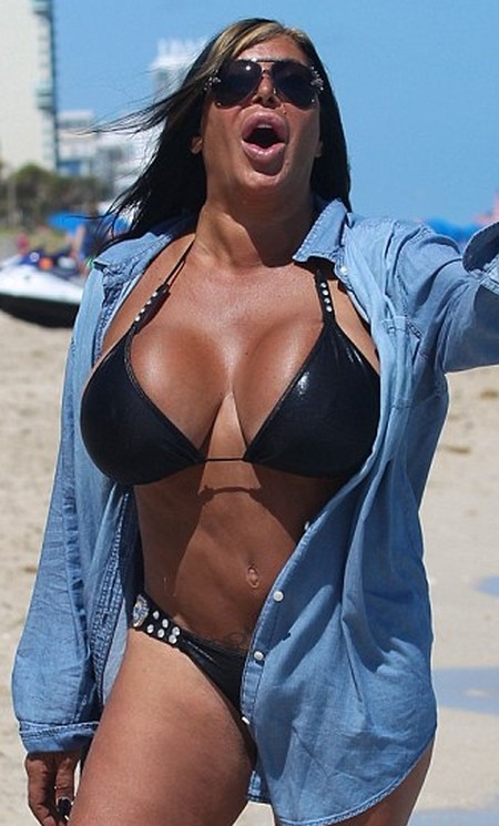Big Ang After Plastic Surgeries