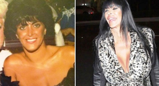 Big Ang Plastic Surgery Confessions