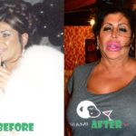 Big Ang Before and After Plastic Surgery 150x150
