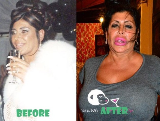 Big Ang Before and After Plastic Surgery 630x476