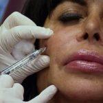 Big Ang Botox Treatment