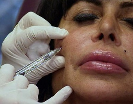 Big Ang Botox Treatment