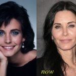 Courteney Cox Before And After Face Reconstruction 150x150