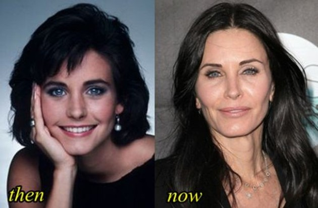Courteney Cox Before And After Face Reconstruction 630x412
