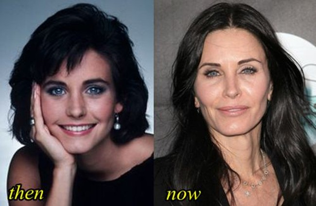 Courteney Cox Before And After Face Reconstruction