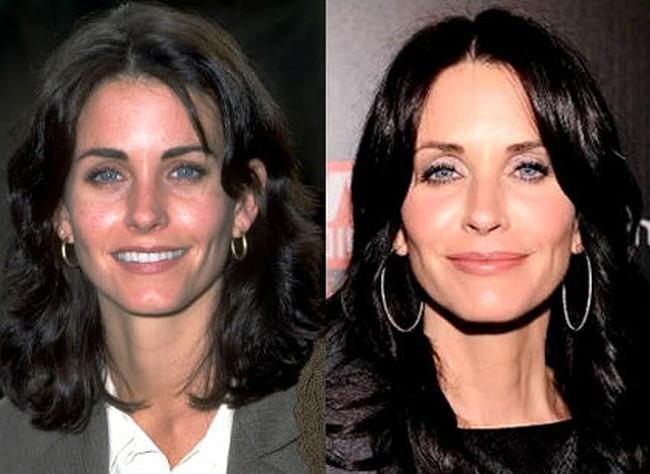 Courteney Cox Before And After Photos