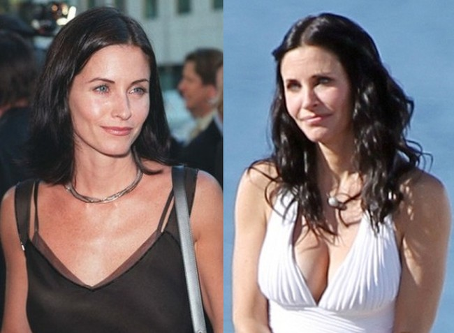 Courteney Cox Before and After Breast Implants