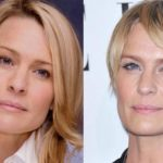 Robin Wright Penn before and after Plastic Surgery photos 150x150