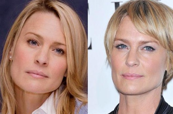 Robin Wright Penn before and after Plastic Surgery photos